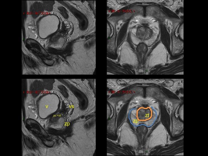 zonas de la prostata seram