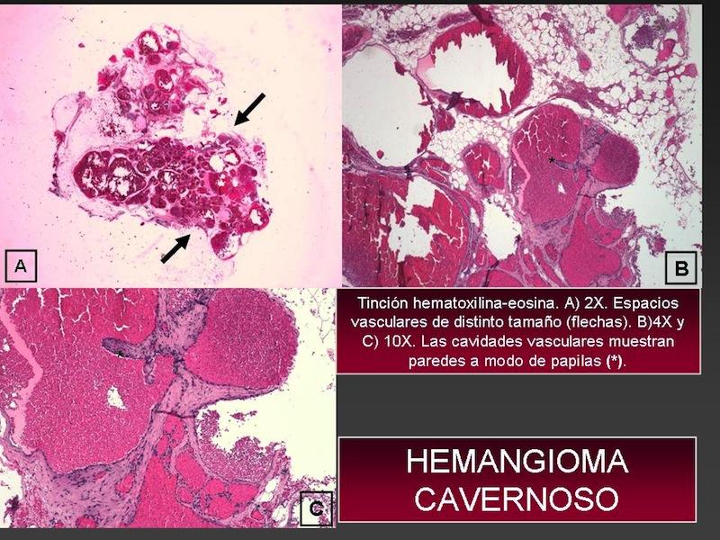 hemangiomas capilares histologia